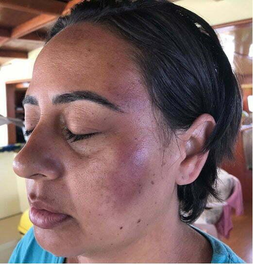 imagem de Maria Augusta Favarato espancada durante assalto em barco em Camamu
